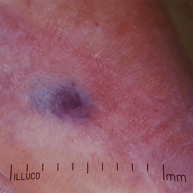 イルコIDS-1100撮影イメージ2